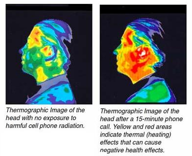 Electromagnetic Imaging of cell phone radiation on human skull